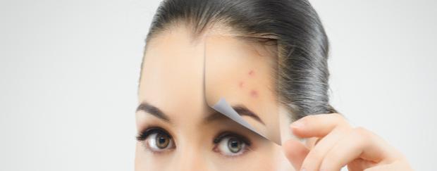Boutons cosmétiques visage femme